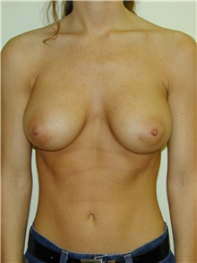 Breast Augmentation After Photo by Randy Proffitt, MD; Mobile, AL - Case 21868
