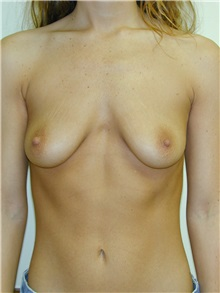 Breast Augmentation Before Photo by Randy Proffitt, MD; Mobile, AL - Case 21868