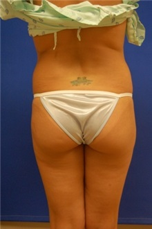 Liposuction Before Photo by Randy Proffitt, MD; Mobile, AL - Case 22000