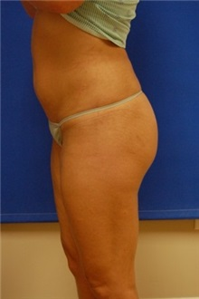 Liposuction After Photo by Randy Proffitt, MD; Mobile, AL - Case 22000