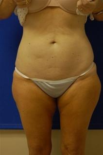 Tummy Tuck Before Photo by Randy Proffitt, MD; Mobile, AL - Case 22009
