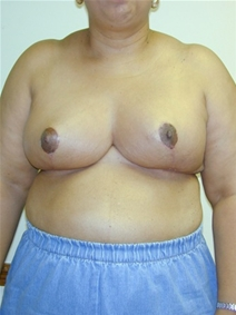 Breast Reduction After Photo by Randy Proffitt, MD; Mobile, AL - Case 22014
