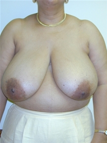 Breast Reduction Before Photo by Randy Proffitt, MD; Mobile, AL - Case 22014