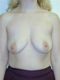 Breast Augmentation Before Photo by Randy Proffitt, MD; Mobile, AL - Case 22020