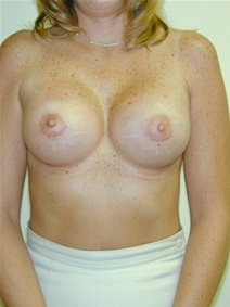Breast Augmentation After Photo by Randy Proffitt, MD; Mobile, AL - Case 22021