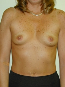 Breast Augmentation Before Photo by Randy Proffitt, MD; Mobile, AL - Case 22021