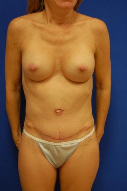 breast augmentation doctors in mobile al