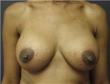 Breast Augmentation After Photo by Emily Pollard, MD; Bala Cynwyd, PA - Case 24239