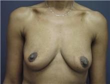 Breast Augmentation Before Photo by Emily Pollard, MD; Bala Cynwyd, PA - Case 24239