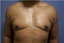 Male Breast Reduction After Photo by Emily Pollard, MD; Bala Cynwyd, PA - Case 24863