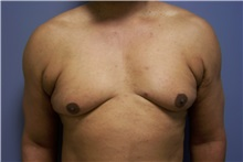 Male Breast Reduction Before Photo by Emily Pollard, MD; Bala Cynwyd, PA - Case 24863