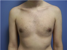 Male Breast Reduction After Photo by Emily Pollard, MD; Bala Cynwyd, PA - Case 24865