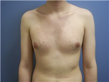 Male Breast Reduction Before Photo by Emily Pollard, MD; Bala Cynwyd, PA - Case 24865