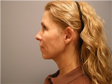 Facelift After Photo by Emily Pollard, MD; Bala Cynwyd, PA - Case 25515