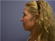 Facelift Before Photo by Emily Pollard, MD; Bala Cynwyd, PA - Case 25515