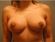 Breast Lift After Photo by Emily Pollard, MD; Bala Cynwyd, PA - Case 28138