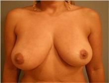 Breast Lift Before Photo by Emily Pollard, MD; Bala Cynwyd, PA - Case 28138