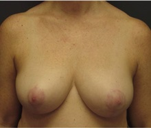 Breast Lift After Photo by Emily Pollard, MD; Bala Cynwyd, PA - Case 28144