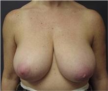 Breast Lift Before Photo by Emily Pollard, MD; Bala Cynwyd, PA - Case 28144