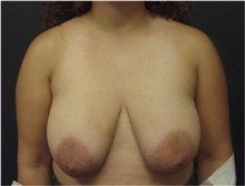 Breast Lift Before Photo by Emily Pollard, MD; Bala Cynwyd, PA - Case 28145
