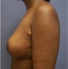 Breast Lift After Photo by Emily Pollard, MD; Bala Cynwyd, PA - Case 28146