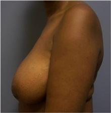 Breast Lift Before Photo by Emily Pollard, MD; Bala Cynwyd, PA - Case 28146