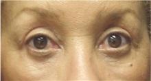 Eyelid Surgery After Photo by Emily Pollard, MD; Bala Cynwyd, PA - Case 28148