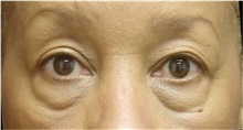Eyelid Surgery Before Photo by Emily Pollard, MD; Bala Cynwyd, PA - Case 28148