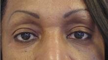 Eyelid Surgery After Photo by Emily Pollard, MD; Bala Cynwyd, PA - Case 28149