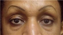 Eyelid Surgery Before Photo by Emily Pollard, MD; Bala Cynwyd, PA - Case 28149