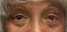 Eyelid Surgery After Photo by Emily Pollard, MD; Bala Cynwyd, PA - Case 28150