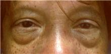 Eyelid Surgery Before Photo by Emily Pollard, MD; Bala Cynwyd, PA - Case 28150