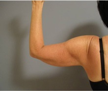 Liposuction After Photo by Emily Pollard, MD; Bala Cynwyd, PA - Case 28155