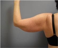 Liposuction Before Photo by Emily Pollard, MD; Bala Cynwyd, PA - Case 28155