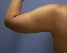 Arm Lift After Photo by Emily Pollard, MD; Bala Cynwyd, PA - Case 28159