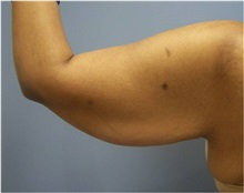 Arm Lift Before Photo by Emily Pollard, MD; Bala Cynwyd, PA - Case 28159