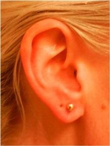 Ear Surgery After Photo by Emily Pollard, MD; Bala Cynwyd, PA - Case 28161