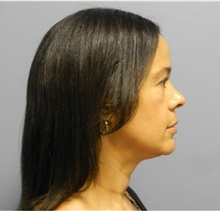 Facelift After Photo by Emily Pollard, MD; Bala Cynwyd, PA - Case 28273