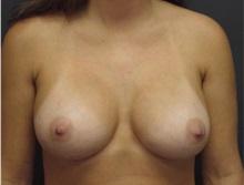 Breast Augmentation After Photo by Emily Pollard, MD; Bala Cynwyd, PA - Case 29645