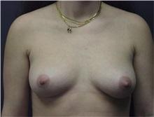 Breast Augmentation Before Photo by Emily Pollard, MD; Bala Cynwyd, PA - Case 29645