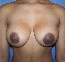 Breast Augmentation After Photo by Emily Pollard, MD; Bala Cynwyd, PA - Case 29654