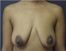 Breast Augmentation Before Photo by Emily Pollard, MD; Bala Cynwyd, PA - Case 29656