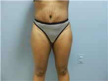 Tummy Tuck After Photo by Emily Pollard, MD; Bala Cynwyd, PA - Case 31701