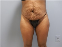 Tummy Tuck Before Photo by Emily Pollard, MD; Bala Cynwyd, PA - Case 31701