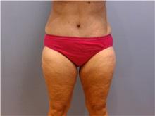 Tummy Tuck After Photo by Emily Pollard, MD; Bala Cynwyd, PA - Case 31705