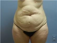 Tummy Tuck Before Photo by Emily Pollard, MD; Bala Cynwyd, PA - Case 31705