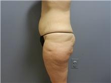 Tummy Tuck Before Photo by Emily Pollard, MD; Bala Cynwyd, PA - Case 31723