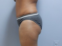 Tummy Tuck After Photo by Emily Pollard, MD; Bala Cynwyd, PA - Case 31726