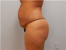 Tummy Tuck Before Photo by Emily Pollard, MD; Bala Cynwyd, PA - Case 31726