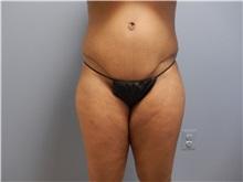 Tummy Tuck After Photo by Emily Pollard, MD; Bala Cynwyd, PA - Case 31775